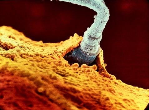 Самый быстрый из 200 миллионов сперматозоид внедряется в яйцеклетку.